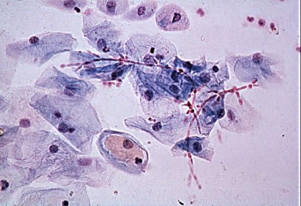 Viêm âm đạo do trùng roi biểu hiện là gì? Cách điều trị
